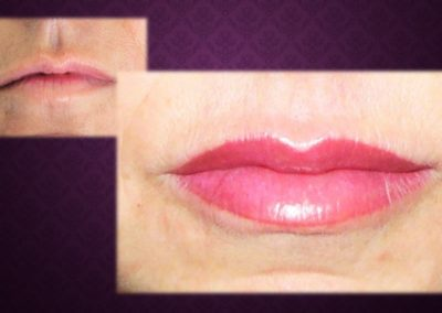 Maquillage Permanent lèvre remplissage Nimes Ysabel Marignan