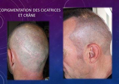 Tricopigmentation Nimes Isabel Marignan, cicatrices fut camouflage nimes , montpellier avignon