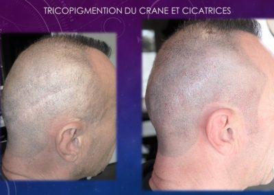 Tricopigmentation Nimes Izabel Marignan (2)