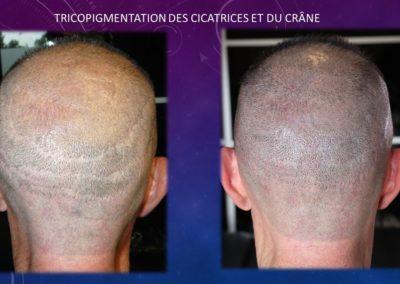 Tricopigmentation Nimes Izabel Marignan (3)