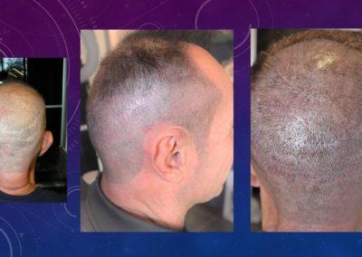 micropigmentation des cicatrices et cuir chevelu