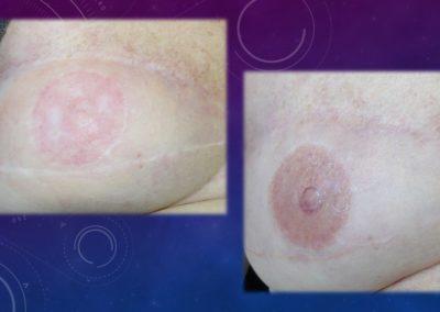 tatouage de l'aréole en fonction de son autre sein