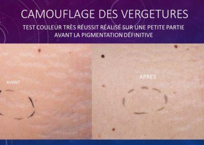 Camouflage des vergetures - Nîmes Isabelle Marignan