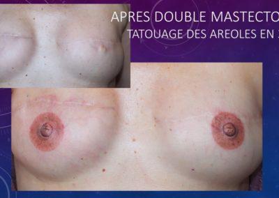 Dermographie réparatrice - Aréole Mammaire - NÎmes Yzabel Marignan