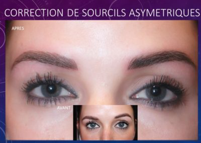 CORRECTION DE SOURCILS ASYMETRIQUES nîmes ysabel marignan Maquillage permanent