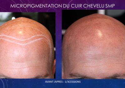 Micropigmentation du cuir chevelu (smp) nimes montpellier marseille ysabelmarignan