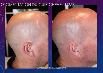 micropigmentation du cuir chevelu