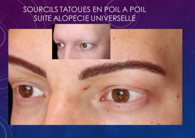 tatouage sourcils post alopécie universelle