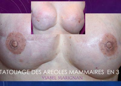 TATOUAGE DES AREOLES MAMMAIRES EN 3 D