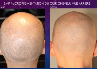 FACE ARRIERE MICROPIGMENTATION DU CUIR CHEVELU