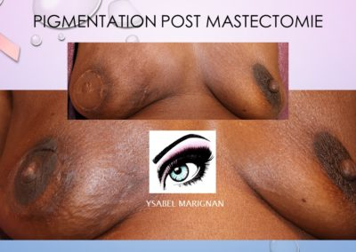 poas cancer tatouage sein, Maquillage permanent Nimes isabellemarignan tatouage réparateur de la plaque aréolo-mamelonnaire