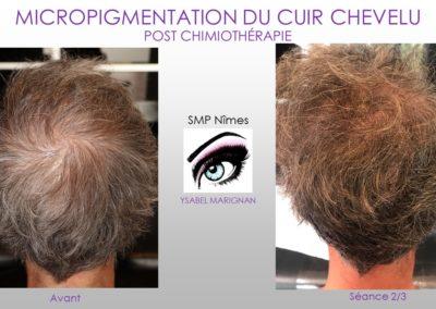 SMP.Micropigmentation du cuir chevelu, alopecie femme,nimes, marseille montpellier