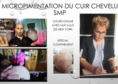 SMP.Micropigmentation du cuir chevelu, camouflage cicatrice d'implant nimes marseille montpellier