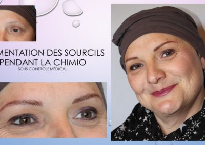 chimiotherapie et MAQUILLAGE PERMANENT NIMES YSABEL MARIGNAN
