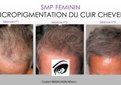 tricopigmentation, micropigmentation du cuir chevelu, spm, nimes , montpellier, marseille