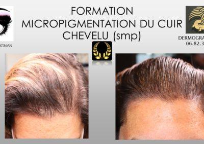 solution calvitie alopécie MICROPIGMENTATION DU CUIR CHEVELU NIMES MONTPELLIER,avignon