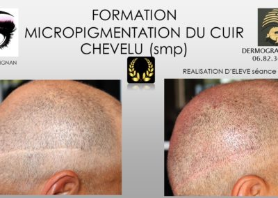 solution calvitie, SMP.Micropigmentation du cuir chevelu, camouflage cicatrice d'implant nimes marseille montpellier