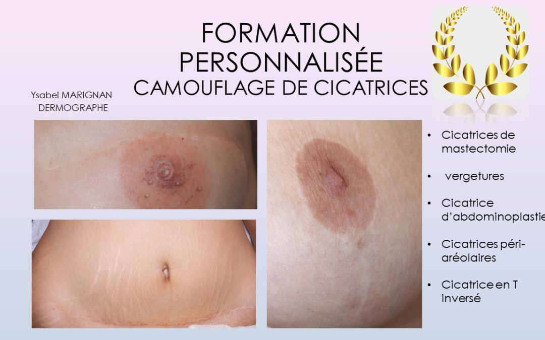 FORMATION INDIVIDUELLE CAMOUFLAGE CICATRICES