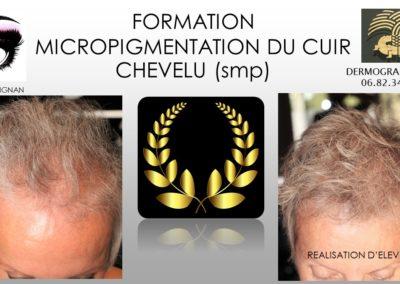densification par tatouage cuir chevelu, alopecie femme solutions ysabel marignan nimes
