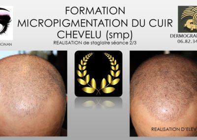 FORMATION EN MICROPIGMENTION CAPILLAIRE NIMES MONTPELLIER MARSEILLE tricopigmentation