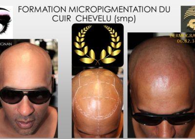 SMP.Micropigmentation du cuir chevelu, camouflage cicatrice d'implant nimes marseille montpellier