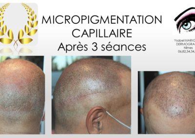 FORMATION EN MICROPIGMENTION CAPILLAIRE NIMES MONTPELLIER MARSEILLE tricopigmentation