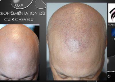 solution calvitie nimes ysabel marignan micropigmentation capillaire montpellier marseille