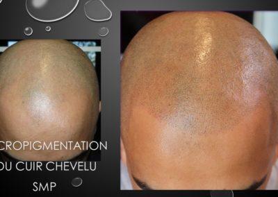 problème de calvitie solution micropigmentation capillaire nîmes,montpellier, avignon, marseille