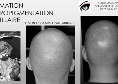 formation scalp micopigmentation nimes france