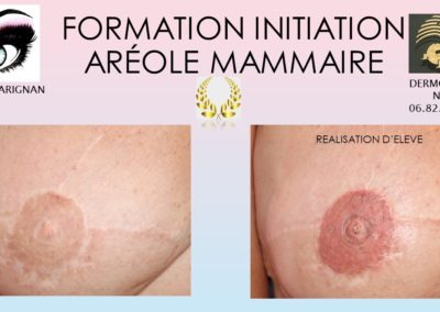 Formation areoles