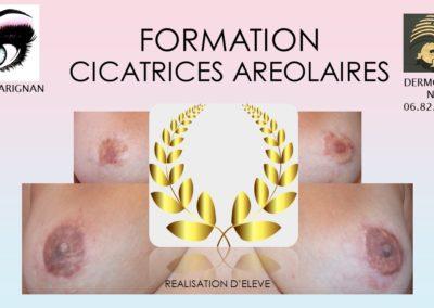 Formation initiation aréole mammaire