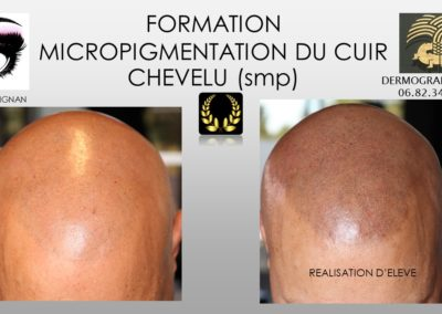 Formation TRICOPIMENTATION HOMME NIMES ALES MONTPELLIER