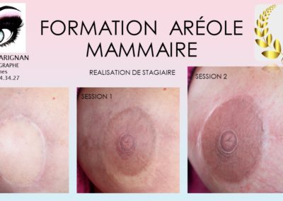 formation dermopigmentation reparatrice nimes montpellier avignon marseille