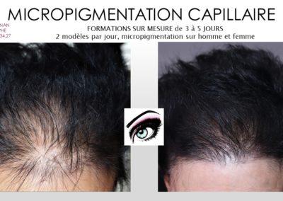 densification des cheveux, solution calvitie feminine, ysabel marignan nimes, montpellier,avignon,marseille