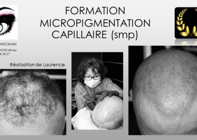fomation solution calvitie nîmes tricopigmentation