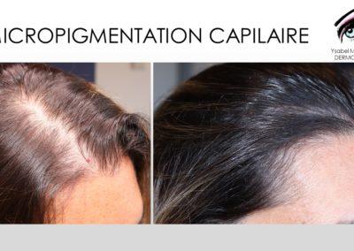 SMP.Micropigmentation du cuir chevelu, nimes marseille montpellier avignon arles ysabel marignan