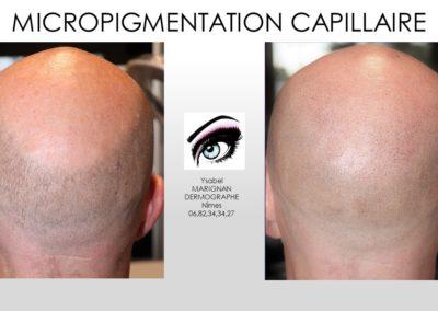 SMP.Micropigmentation du cuir chevelu, nimes marseille montpellier, solution calvitie , solution chauve