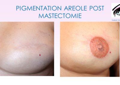 dermopigmentation post cancer dermopigmentation tatouage téton nimes, montpellier marseilles, avignon nice, aix en provence