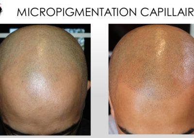 MICROPIGMENTATION DU CUIR CHEVELU NIMES MONTPELLIER, avignon, arles, alès, solution calvitie solution pour chauve