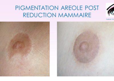 cicatrices solutions dermopigmentation nimes montpellier lyon marseille lille, nice