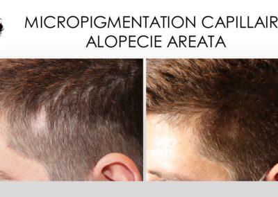 alopecie areata solution, camouflage alopecie aréata, micropigmentation sur alopéccie aréata, nimes montpellier,arles, alès, avignon