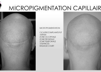 solution calvitie chute de cheveux solutions, alopecie femme, densification implants, complements micropigmentation implents, ysabel marignan nimes montpellier, avignon, arles, ales