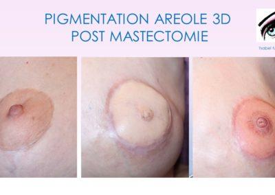 dermopigmentation, tatouage réparateur Nîmes, montpellier, avignon