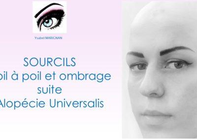 Maquillage permanent sur alopecie universelle nimes