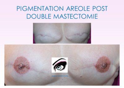 formation dermopigmentation Nîmes, montpellier, paris nice marseillevignon