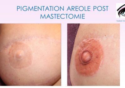 formation dermopigmentation Nîmes, montpellier, avignon