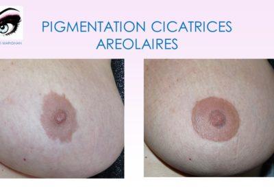 dermopigmentation tatouage téton nimes, montpellier marseilles, avignon nice, aix en provence