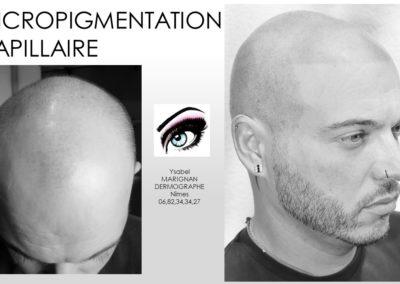 solution calvitie , chauve solution par tricopigmentation, micropigmentation capilliare nimes, montpellier, arles, alèes, avignon