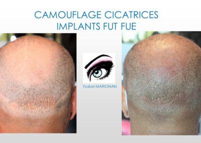 camouflage cicatrices implants fut, fue, reduction tonsure nimes, montpellier, alès, arles, avignon