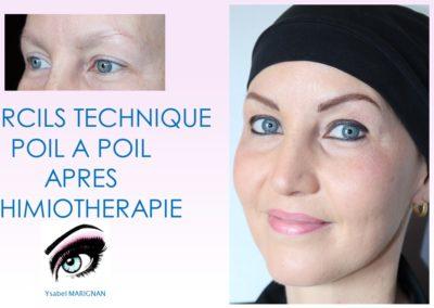 dermopigmentation des sourcils apres chimiotherapie poil a poil nimes aix arles, avignon